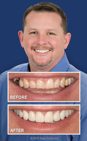 Smile makeover before/after